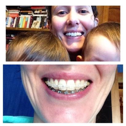 Adult Braces - 9 month progress